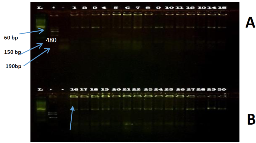 Fig. 02 Paramphistómidos PCR-RFLP