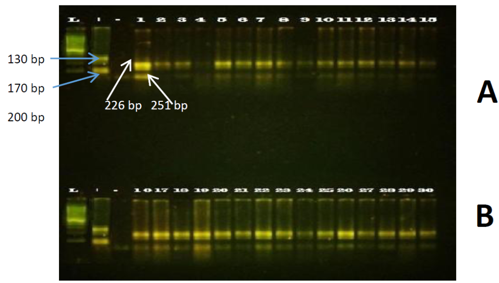 Fig. 03 Paramphistómidos PCR-RFLP
